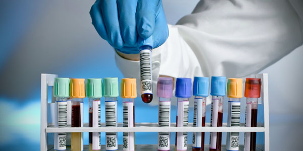 Werlabs Phlebotomy Services Launched in the UK